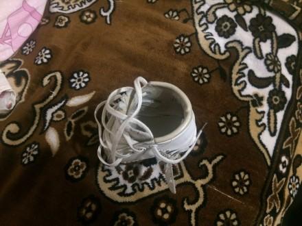 Продам брейсы, ботиночки американской марки Маркелл для лечения косолапости по м. Борисполь, Киевская область. фото 9