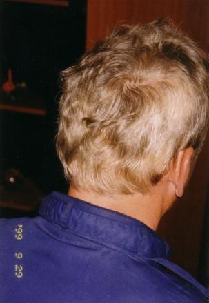 Лучший трихолог Украины. Лечение алопеции (облысения) и выпадения волос.  Кли. Киев, Киевская область. фото 7
