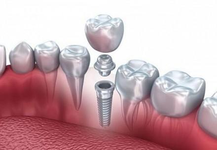имплант, стоматология, протезирование зубов в Днепре супер цена!!!. Днепр. фото 1