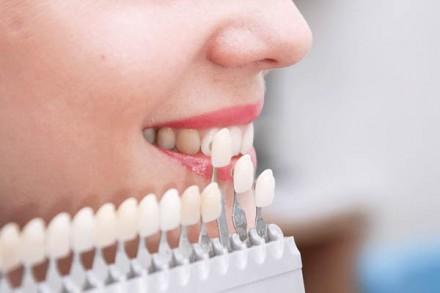 отбеливание зубов днепр. Днепр. фото 1
