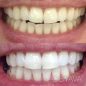 Если вы хотите сделать себе белые зубки то будем вам рады. Все просто звоните ут. Харьков, Харьковская область. фото 1